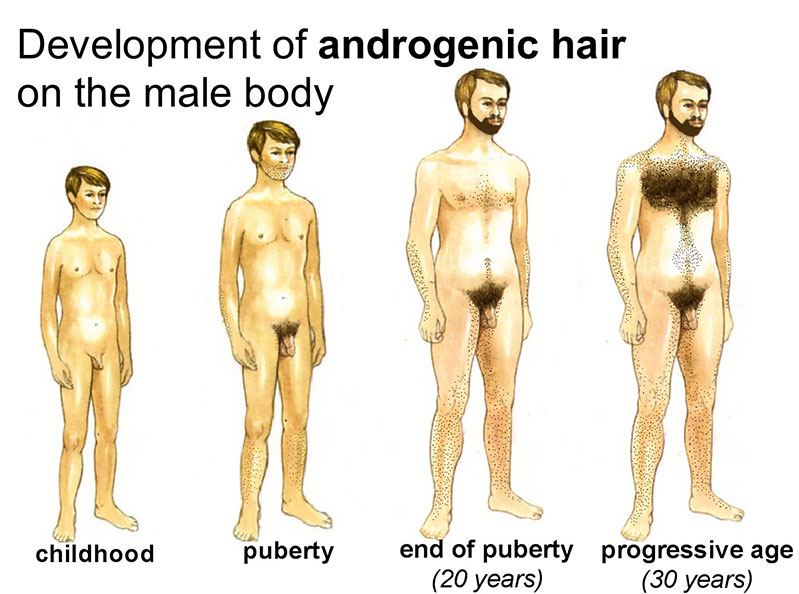 Androgenic Hair
